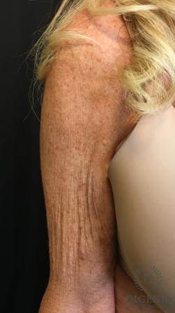 Brachioplasty: Patient 1 - Before Image 3
