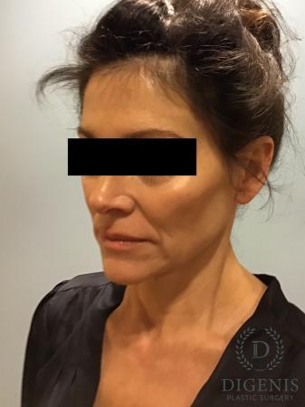 Facelift: Patient 9 - Before Image 2