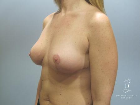 Breast Lift: Patient 7 - After Image 4