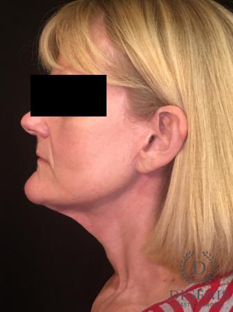 Facelift: Patient 3 - After Image 5