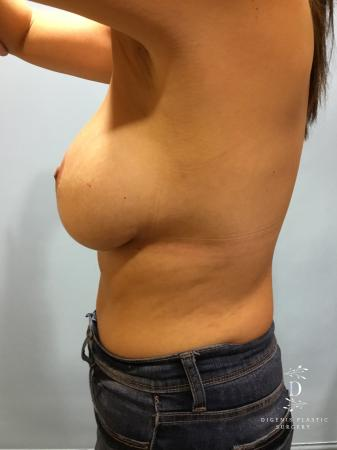 Breast Lift With Implants: Patient 2 - Before and After Image 3