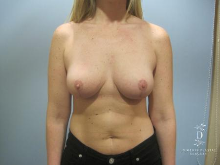 Breast Lift: Patient 7 - After Image 1