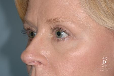 Eyelid Surgery: Patient 7 - After Image 3