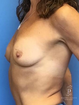 Breast Lift With Implants: Patient 3 - Before Image 2