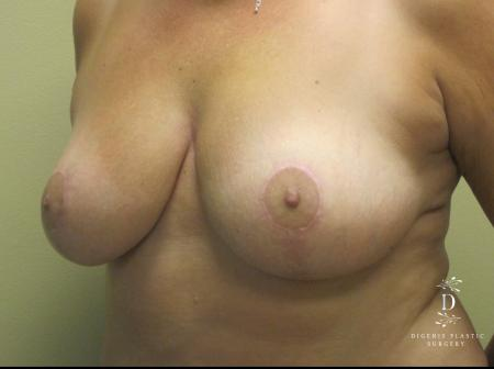 Breast Lift: Patient 1 - After Image 4
