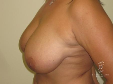 Breast Lift: Patient 1 - Before and After Image 5