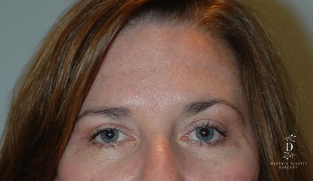 Eyelid Surgery: Patient 2 - After Image