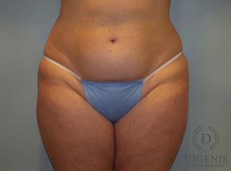 Liposuction: Patient 4 - Before Image