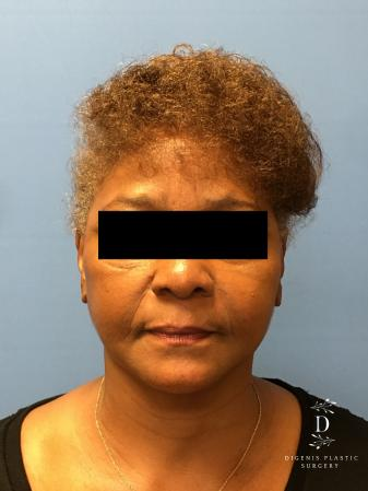 Facelift: Patient 8 - After Image