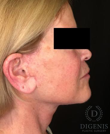 Facelift: Patient 1 - After Image 3
