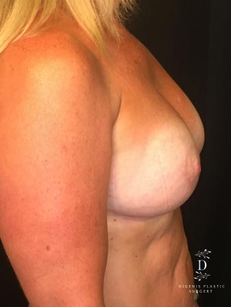 Breast Lift With Implants: Patient 8 - After Image 3