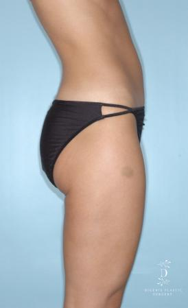 Liposuction: Patient 2 - After Image 3