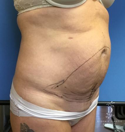Abdominoplasty: Patient 2 - Before Image 2