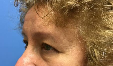 Eyelid Surgery: Patient 3 - Before Image 4