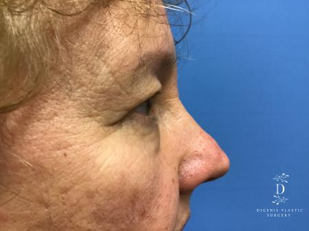 Eyelid Surgery: Patient 3 - Before Image 3