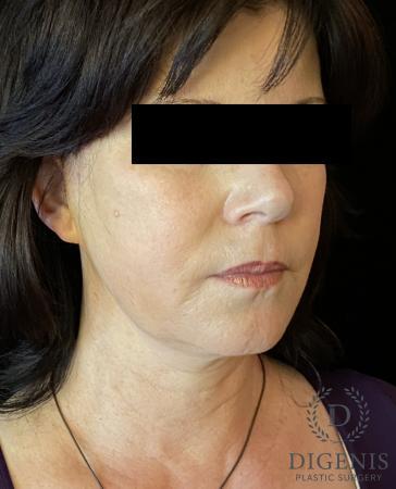 Digenis Refresh Lift: Patient 4 - After Image 2