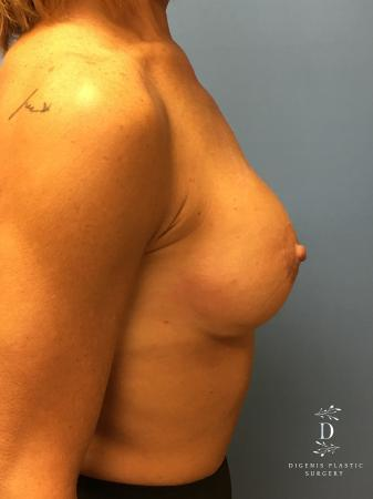 Breast Lift With Implants: Patient 3 - After Image 5