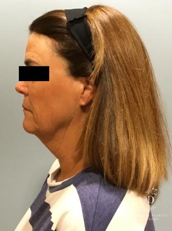 Facelift: Patient 11 - Before and After Image 5