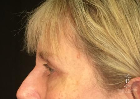 Eyelid Surgery: Patient 4 - After Image 5