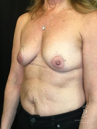 Breast Lift With Implants: Patient 8 - Before Image 4