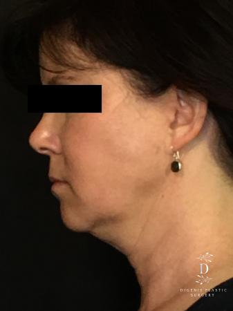 Digenis Refresh Lift: Patient 4 - Before and After Image 5