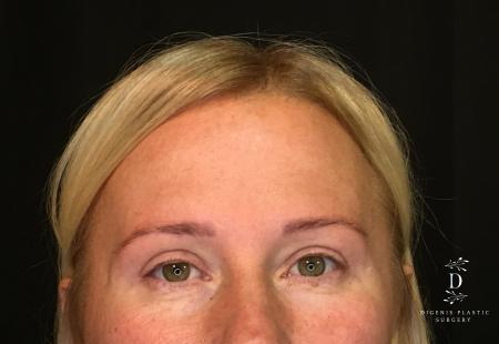 Eyelid Surgery: Patient 9 - After Image