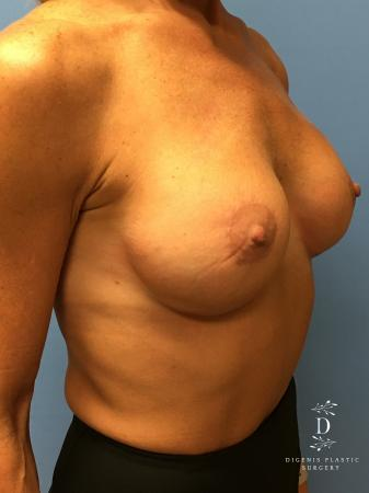 Breast Lift With Implants: Patient 3 - After Image 4