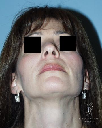 Rhinoplasty: Patient 5 - After Image 6