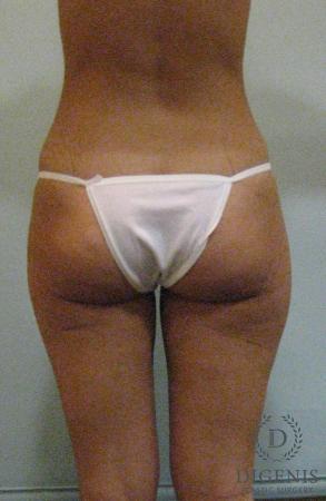 Liposuction: Patient 2 - Before Image 2