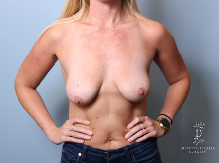 Breast Lift: Patient 7 - Before Image 1
