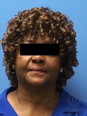 Facelift: Patient 8 - Before Image