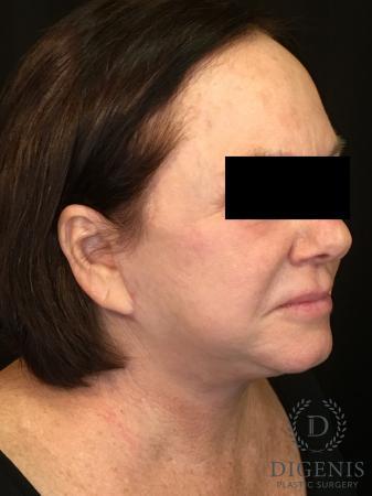 Facelift: Patient 13 - After Image 2