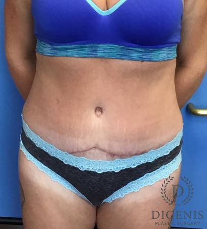 Abdominoplasty: Patient 2 - After Image 1