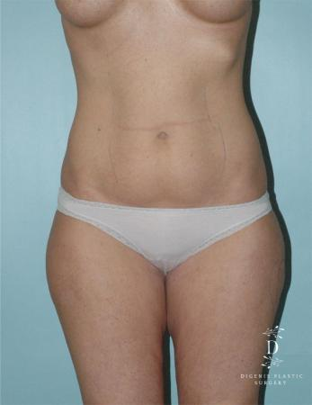 Liposuction: Patient 1 - Before Image 1