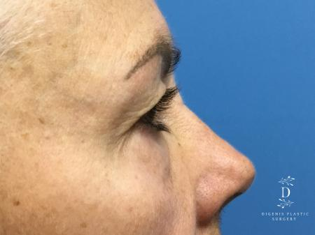 Eyelid Surgery: Patient 5 - Before Image 3