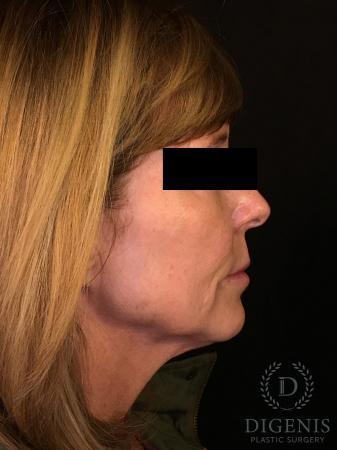 Digenis Refresh Lift: Patient 3 - Before Image 3