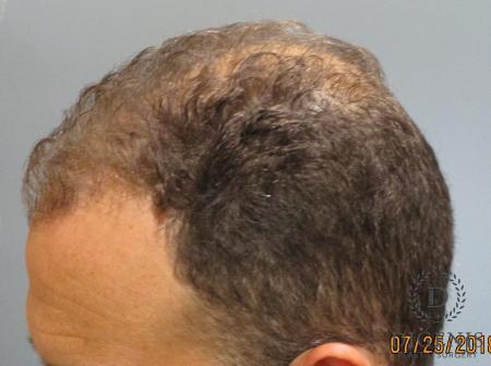 NeoGraft Hair Restoration: Patient 2 - Before Image 1