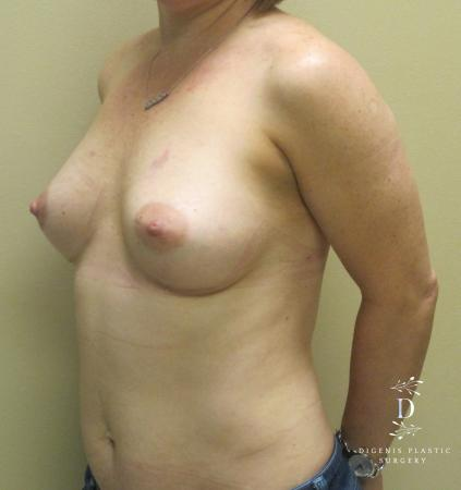 Breast Lift With Implants: Patient 1 - After Image 4