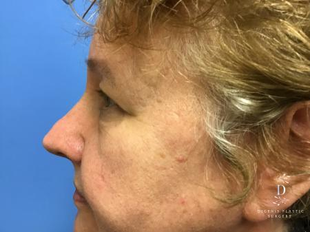 Eyelid Surgery: Patient 3 - Before and After Image 5
