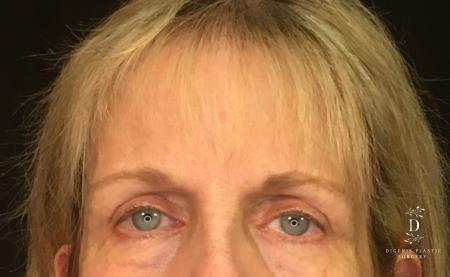 Eyelid Surgery: Patient 4 - After Image