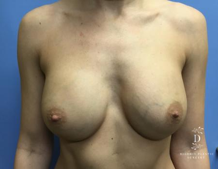 Breast Augmentation: Patient 2 - After Image 1