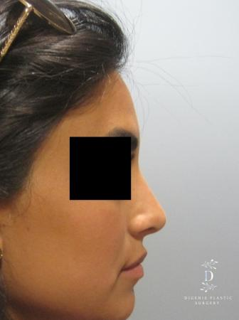 Rhinoplasty: Patient 7 - After Image 3