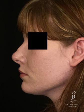 Rhinoplasty: Patient 2 - After Image 5