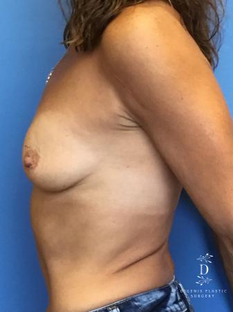 Breast Lift With Implants: Patient 3 - Before Image 3