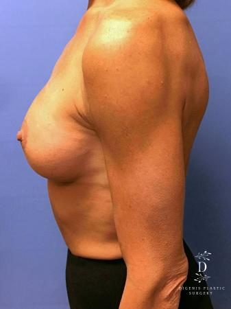 Breast Lift With Implants: Patient 3 - After Image 3