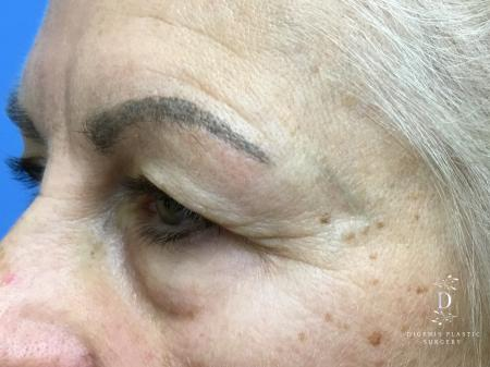 Eyelid Surgery: Patient 5 - Before Image 4