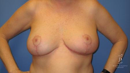 Breast Lift: Patient 6 - After Image