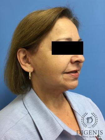 Facelift: Patient 7 - After Image 2