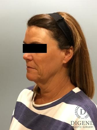 Facelift: Patient 11 - Before Image 4