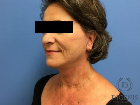 Facelift: Patient 15 - After Image 4